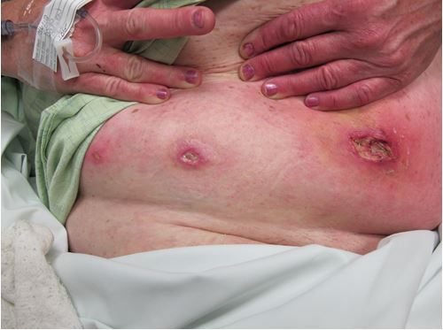 рани от хлебарка